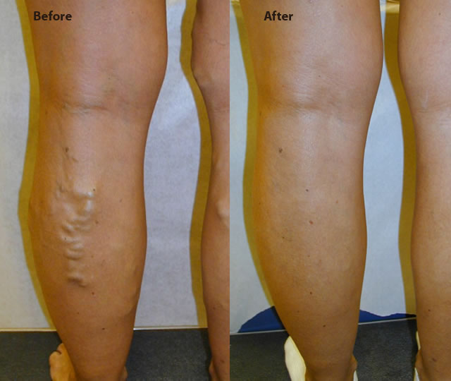 symptomatic varicose veins